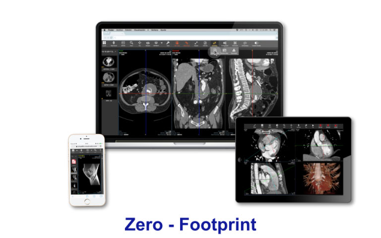 VM-virtual-film-vna-visor-zero-footprint